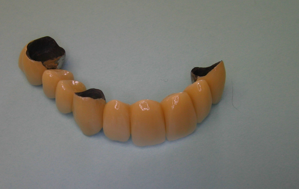 9-unit porcelain bridge constructed to replace missing teeth