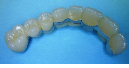 Before90 year-old female needed an 8-unit upper Bridge